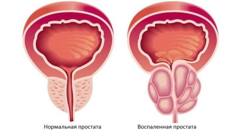 лечение простатита травами самый эффективный рецепт