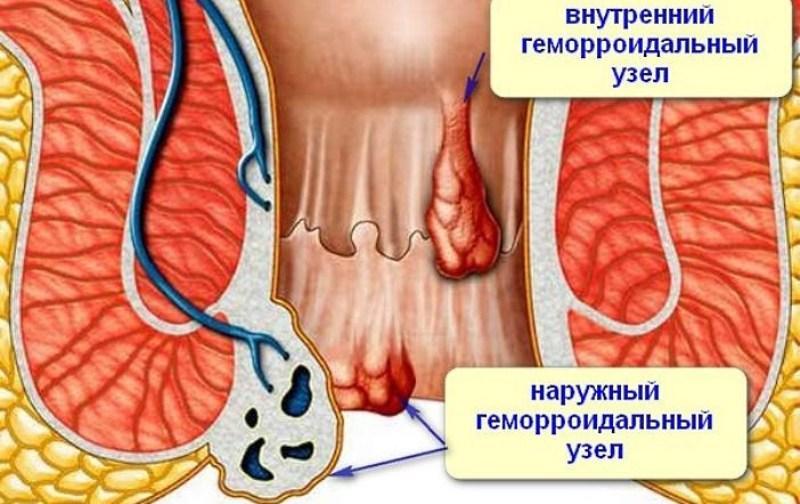 лечение геморроя 3 степени без операции