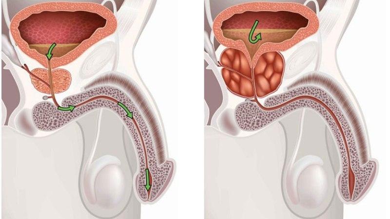 Обострение хронического простатита у мужчин симптомы и лечение