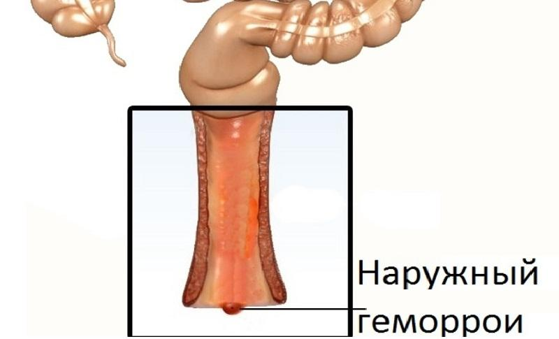 Гепариновая мазь при лечении геморроя во время и после беременности - отзывы