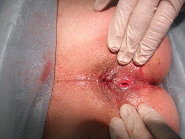 отзывы после операции по удалению свища прямой кишки