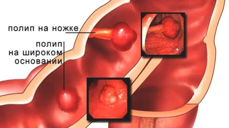 полипы в прямой кишке симптомы