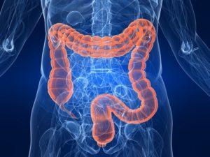 признаки онкологии кишечника и прямой кишки