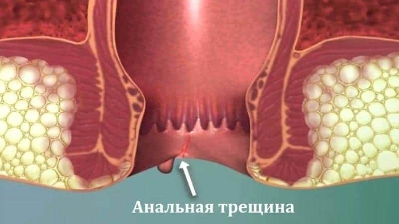 трещина в заднем проходе у ребенка лечение комаровский