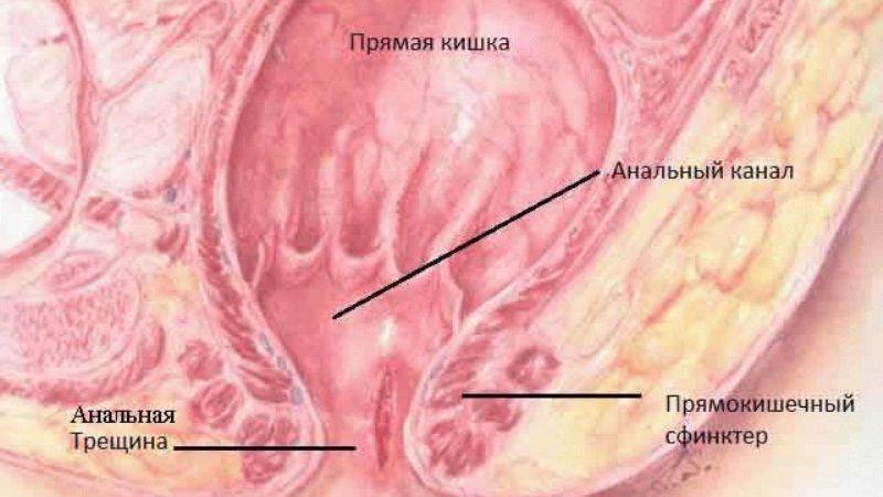 лечение у детей анальных трещин