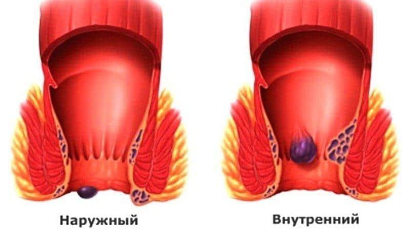 мокнущий геморрой симптомы и лечение