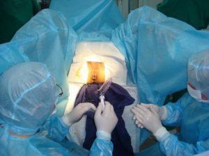 лечение геморроя методом дезартеризации