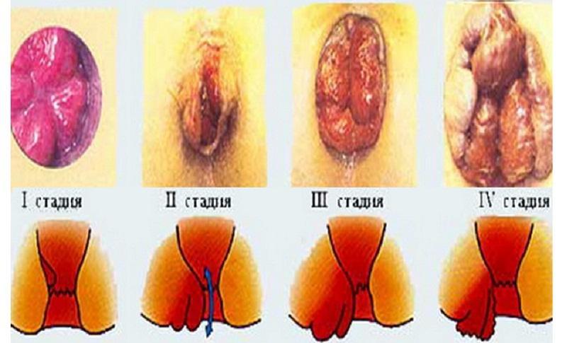 Как может выглядеть геморрой при беременности фото