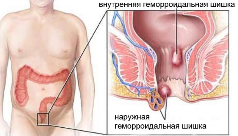 строение и функции прямой кишки у женщин