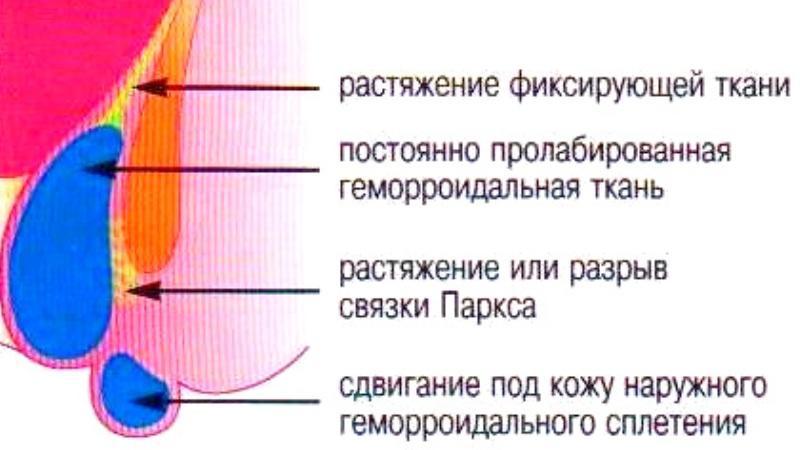флебодиа 600 отзывы при геморрое