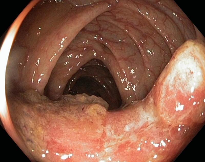фото рак ануса симптомы