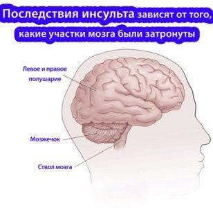 геморроидальный инсульт головного мозга что это такое