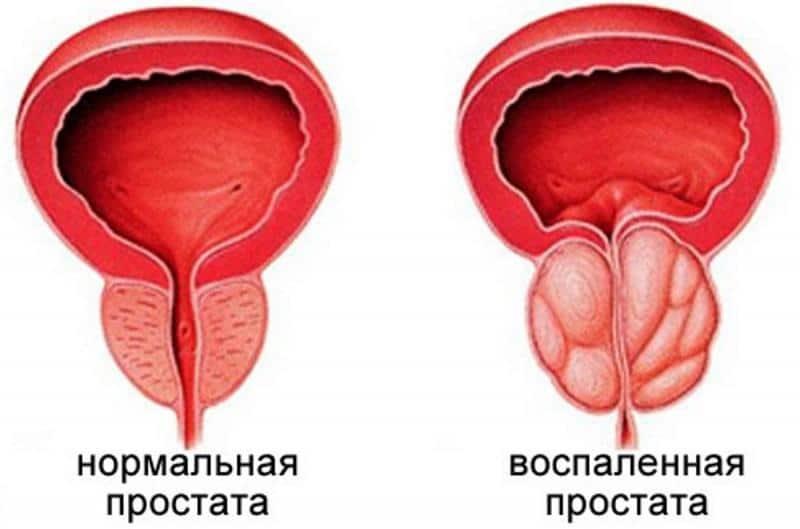Лечение хронического калькулёзного простатита