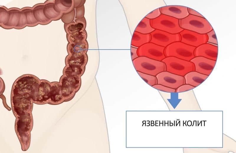 хронический катаральный колит кишечника симптомы и лечение у взрослых