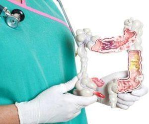 как лечить язвенный колит кишечника народными средствами