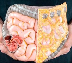 язвенный колит кишечника симптомы и лечение народными средствами у взрослых