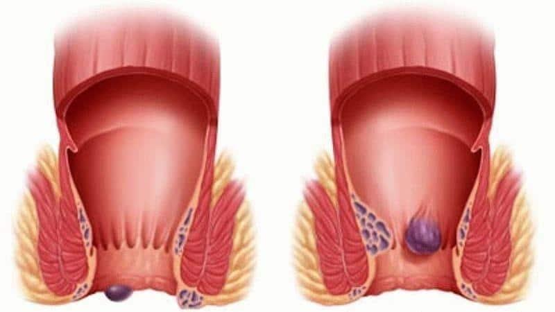 Наружный геморрой симптомы и лечение у взрослых