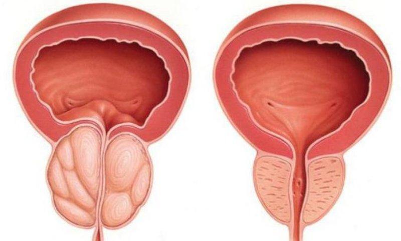 китайский пластырь урологический для лечения простатита
