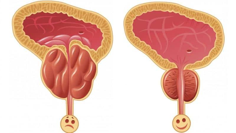 Бактериальный простатит бесплодие острый простатиты у мужчин симптомы лечение народными средствами