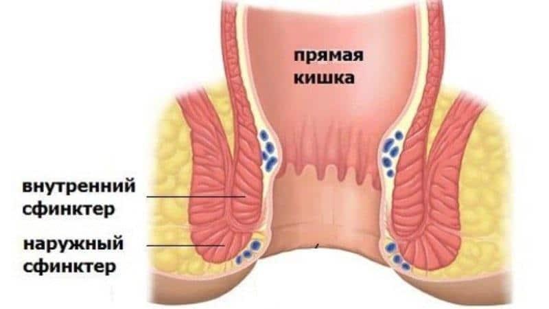 как укрепить сфинктер прямой кишки