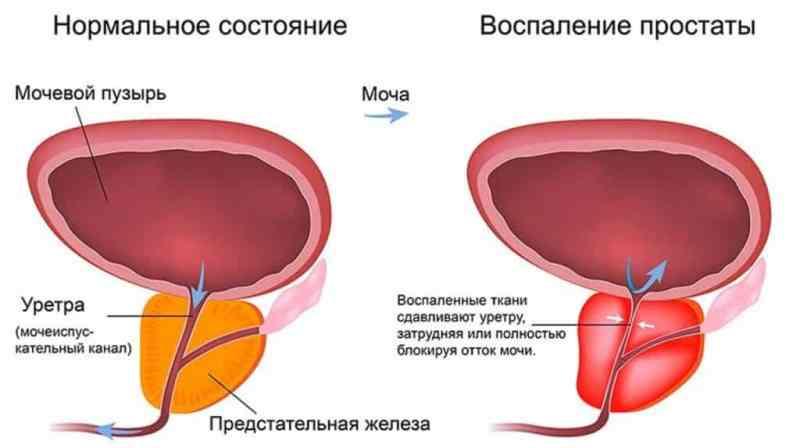 альфа адреноблокаторы препараты при простатите