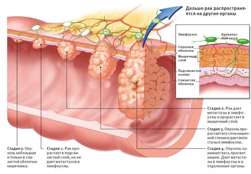 опухоль в прямой кишке симптомы