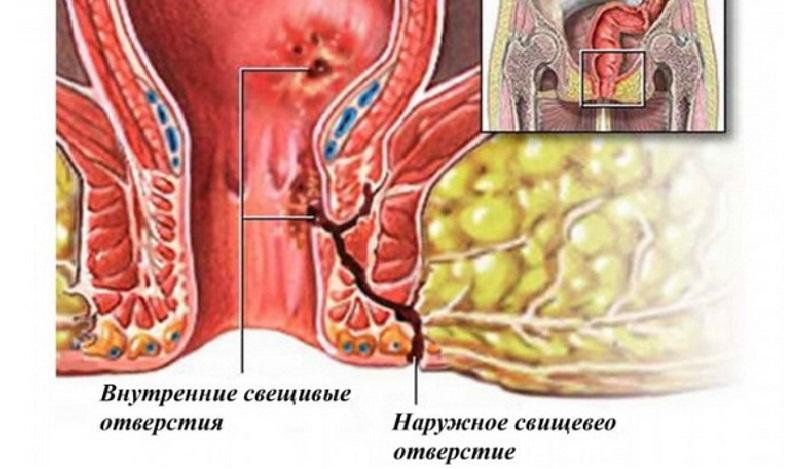 парапроктит у детей фото и лечение