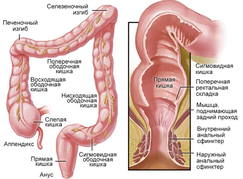 полипы прямой кишки симптомы лечение народными средствами