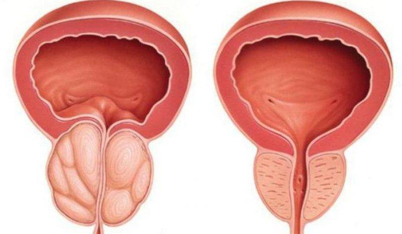 профилактика простатита у мужчин лекарственные препараты