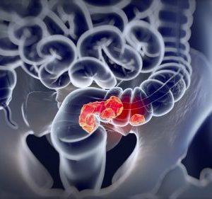 Симптомы и лечение рака ободочной кишки