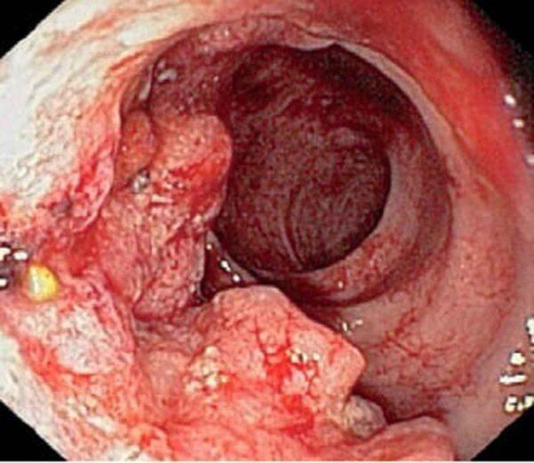 сфинктерит прямой кишки симптомы лечение