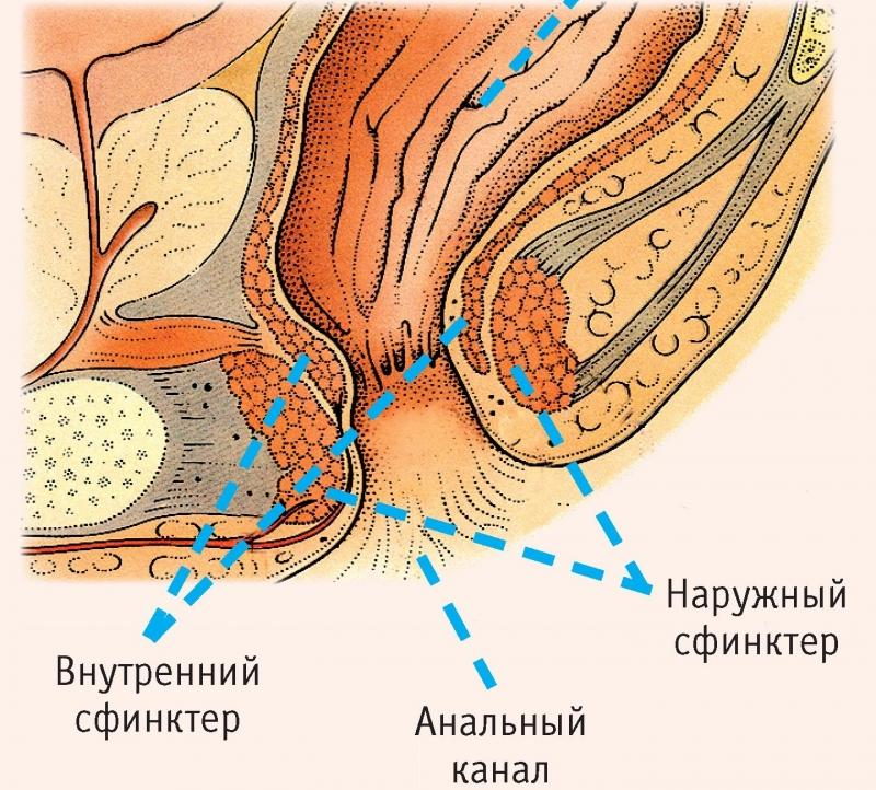 симптомы спазма сфинктера прямой кишки