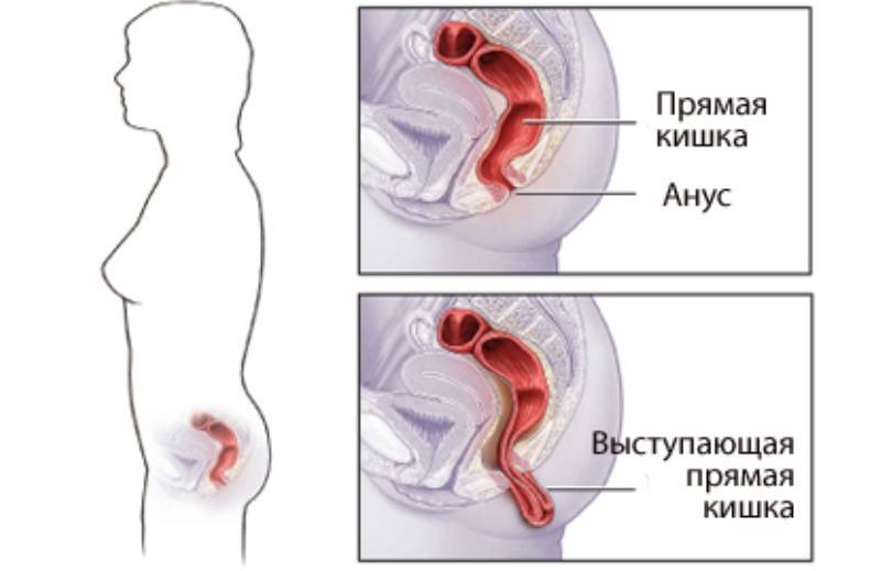 болезни прямой кишки и заднего прохода симптомы