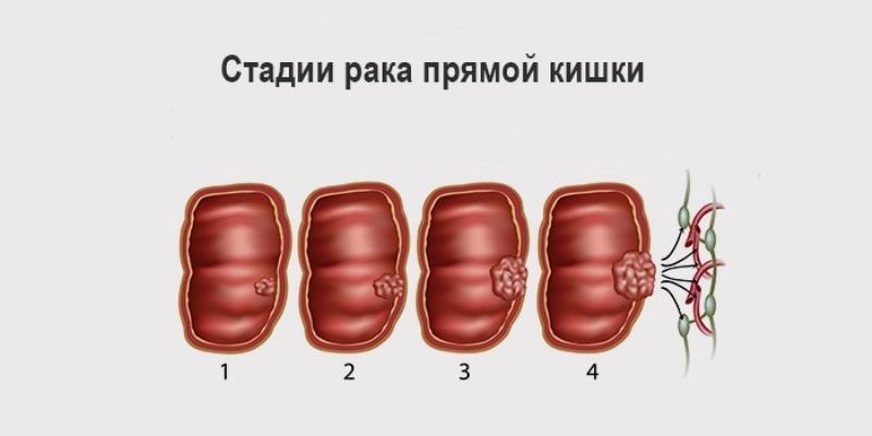воспалительные заболевания прямой кишки