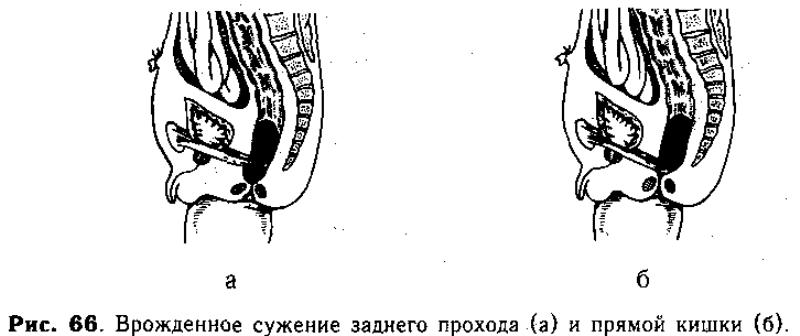 узлы в прямой кишке
