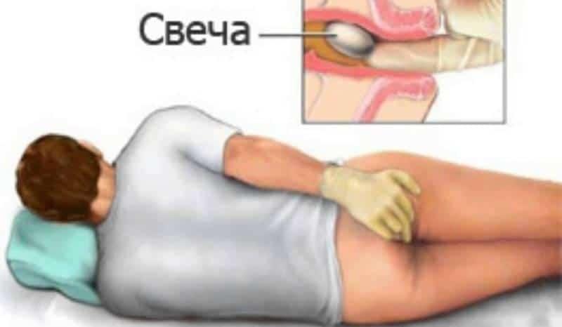 Анестезол свечи от геморроя: инструкция по применению и отзывы