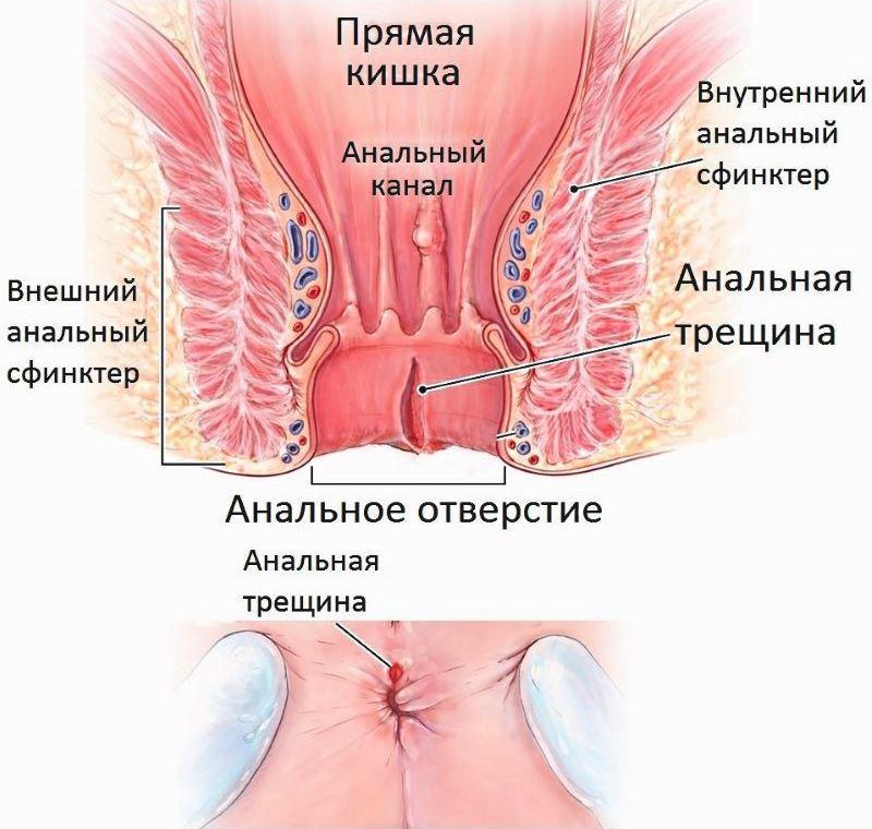 лечение от паразитов отзывы