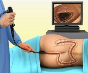 Что такое эндометриоз прямой кишки и его симптомы
