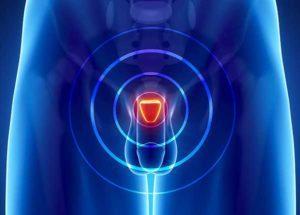 Что такое когнестивный простатит и его лечение