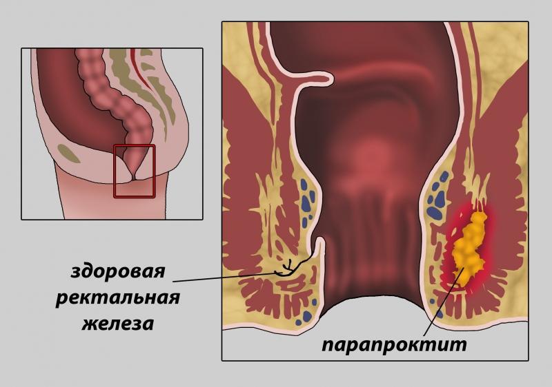 Как лечить парапроктит после операции