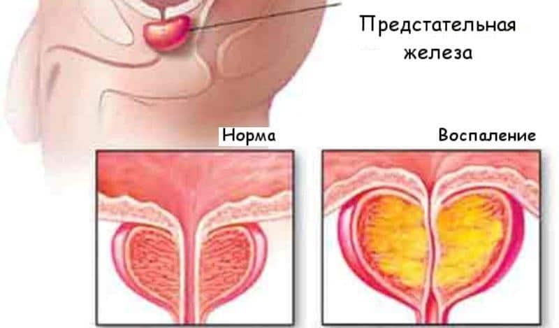 Имбирь при простатите: рецепт для лечения простатита и отзывы