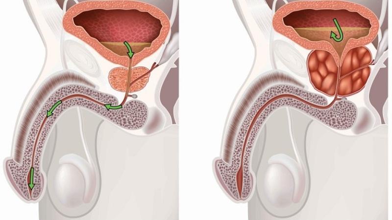 Витафон от простатита: инструкция по применению и отзывы