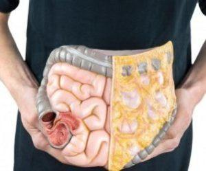 Язвенный колит: лечение препаратами