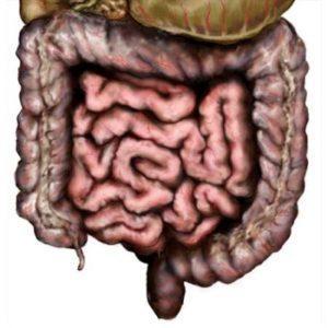 Что такое пневматоз толстой кишки и его лечение